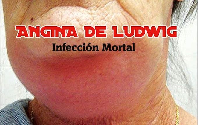 ANGINA de LUDWIG: Infección Mortal