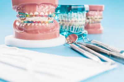 Diş Teli Nedir
