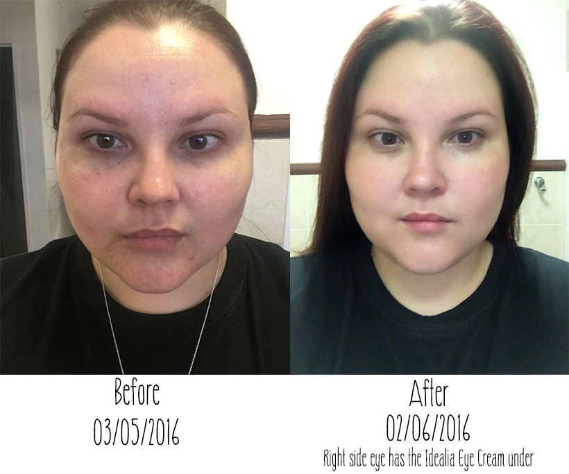 Vichy Normaderm Results
