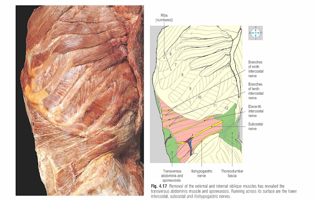 Removal of the external and internal oblique muscles has revealed the transversus abdominis muscle and aponeurosis. Running across its surface are the lower intercostal, subcostal and iliohypogastric nerves.