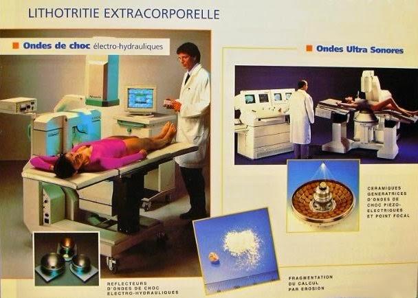 lithotritie extra corporelle infirmier