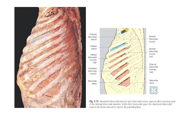 Innermost intercostal muscles and intercostal nerves exposed after removing parts of the internal intercostal muscles. In the third intercostal space the innermost intercostal muscle has been removed to expose the parietal pleura.