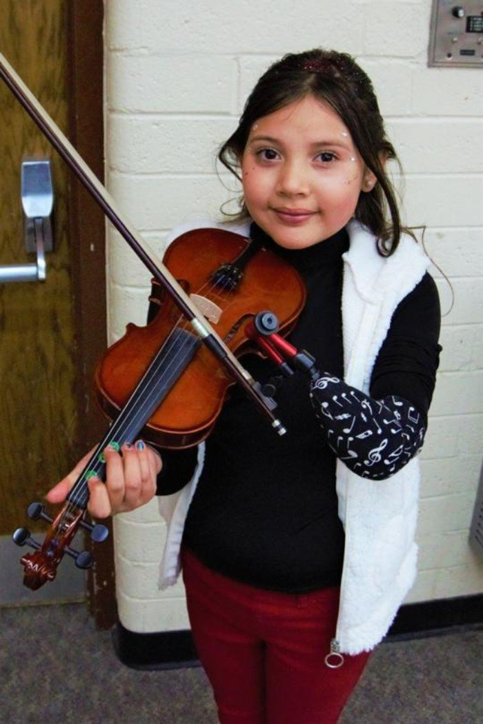 child with a prosthetic limb playing the violin