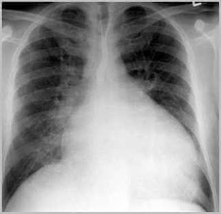 Kalp büyümesi röntgen filmi