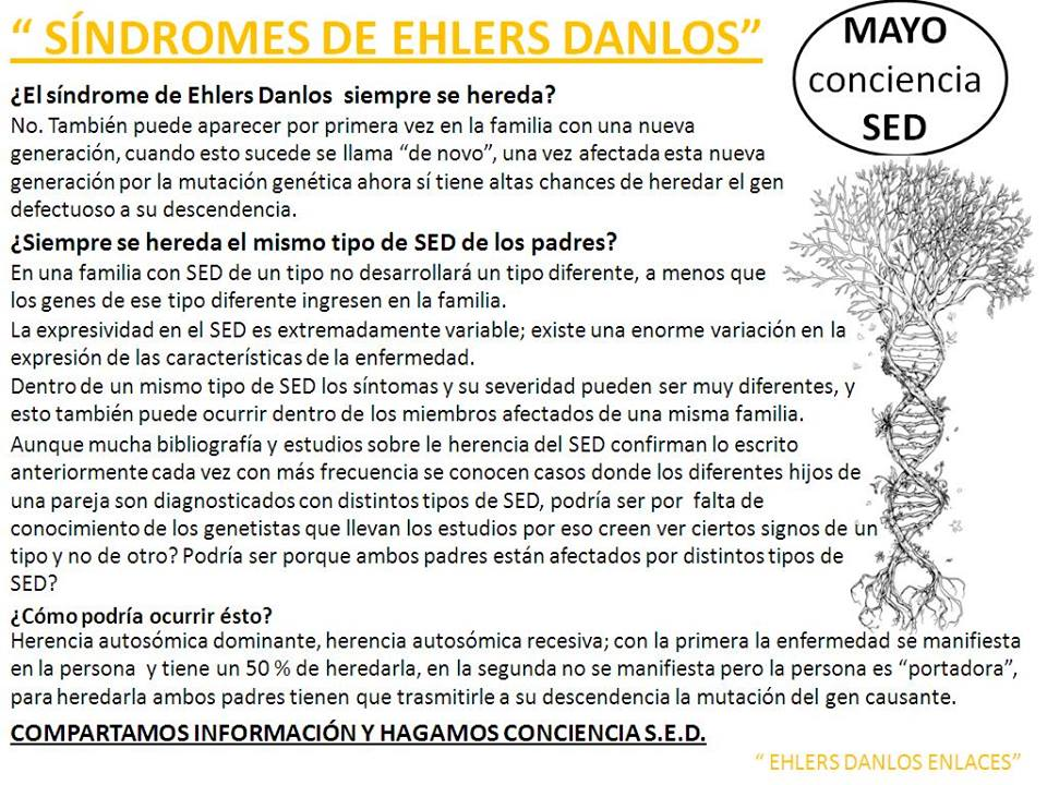EHLERS DANLOS \