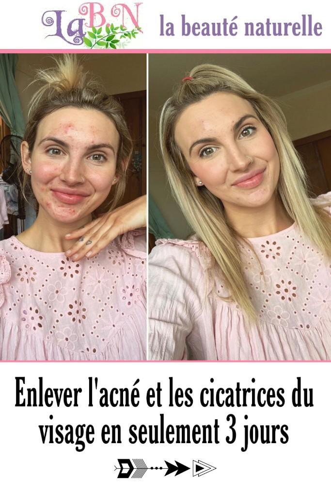 Enlever l'acné et les cicatrices du visage en seulement 3 jours
