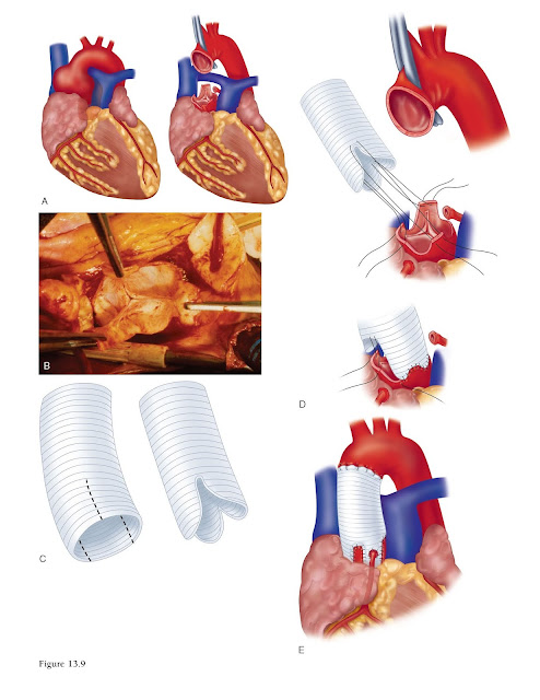 All three aortic sinuses can be replaced with a tailored tubular Dacron graft