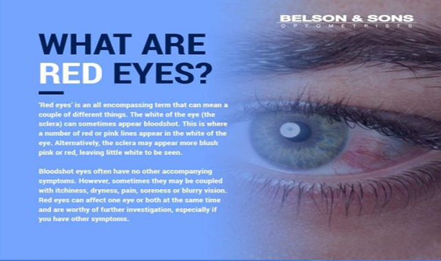 What Are Red Eyes? #infographic