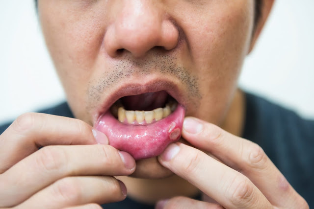 Stomatitis
