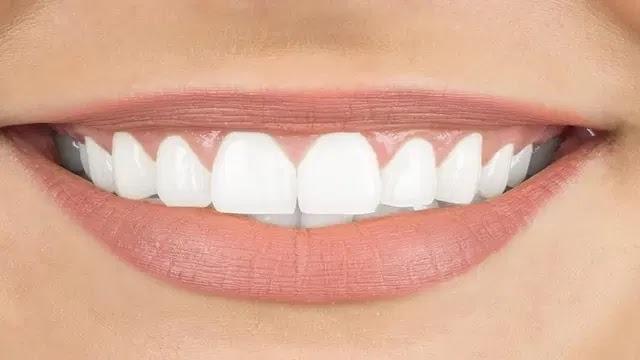 طريقة لتبييض الأسنان الصفراء بشكل طبيعي.