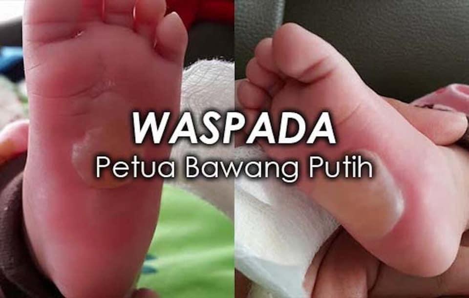 doktor nasihat waspada petua bawang putih bayi