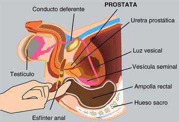 como frotar la próstata hasta el orgasmo