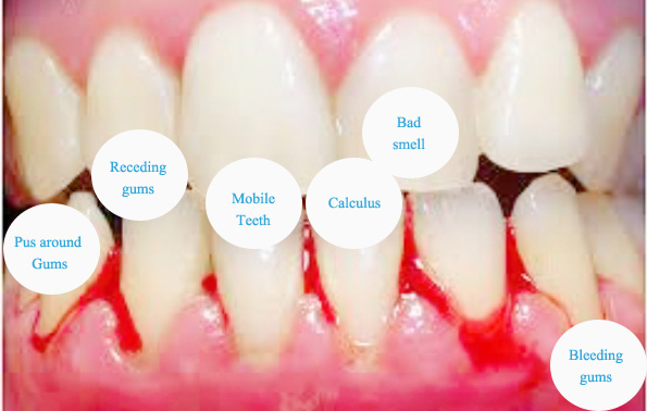 symptoms of gum disease
