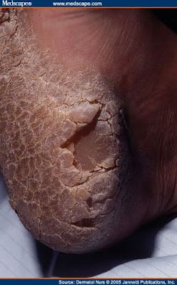 Hyperkeratosis of the sole