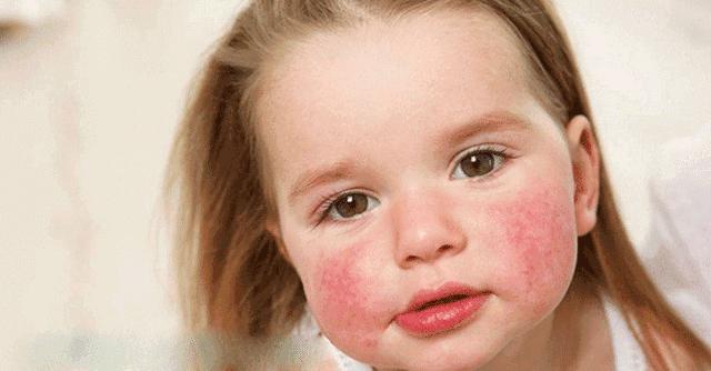 ما هي حساسية الطعام عند الأطفال واهم اعراضها