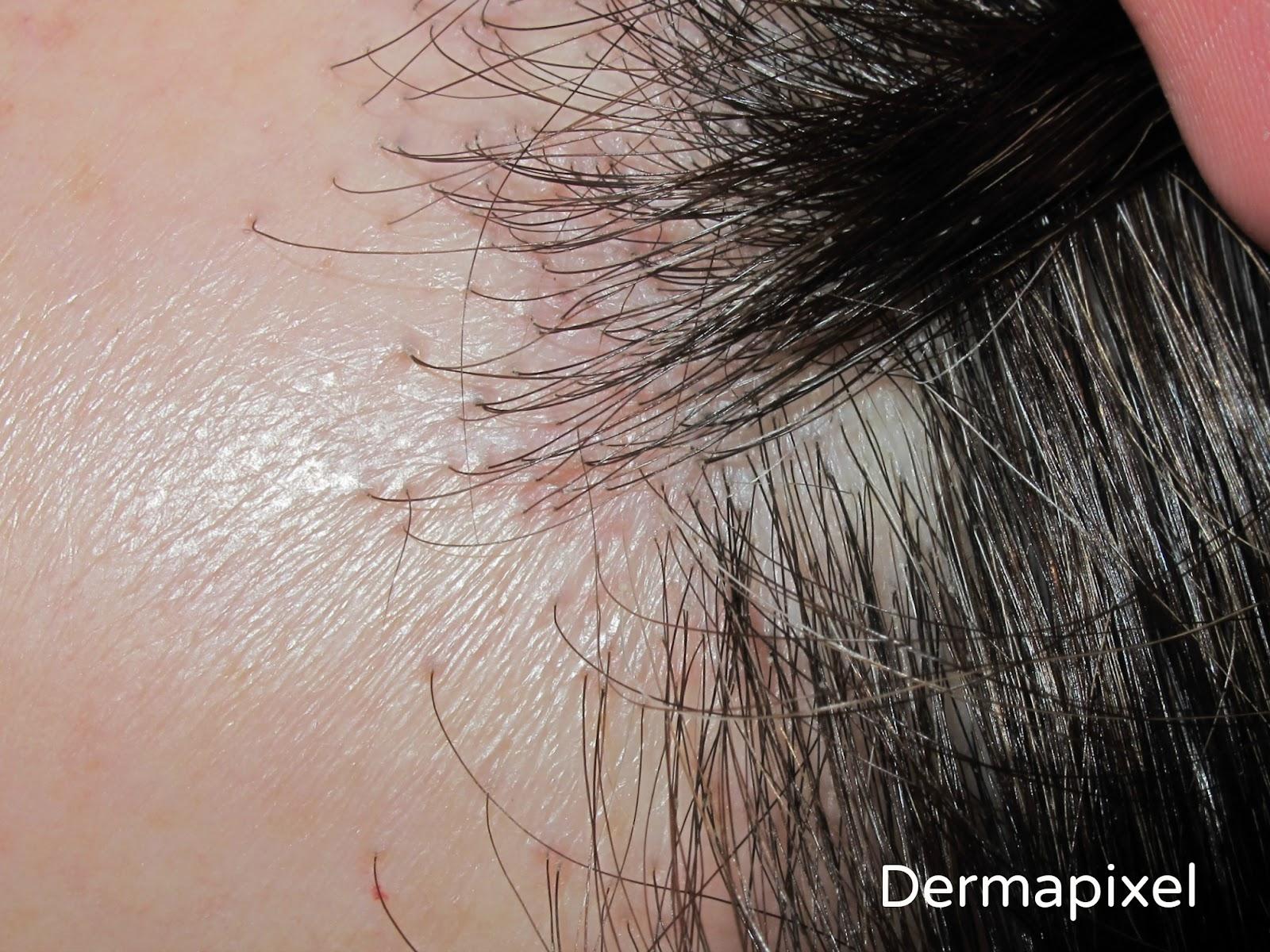 Peinados para mujeres con alopecia frontal
