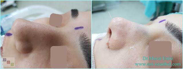Nose Tip Plasty in Women, Thick Skinned Nose Tip Aesthetic Surgery, Nose Tip Lifting