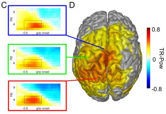 図:運動前の低周波数脳波