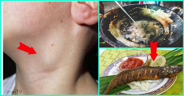 Ternyata Makan Ikan Lele Untuk Kesehatan Sangat Berbahaya!!! Berikut 5 Bahayanya!!!