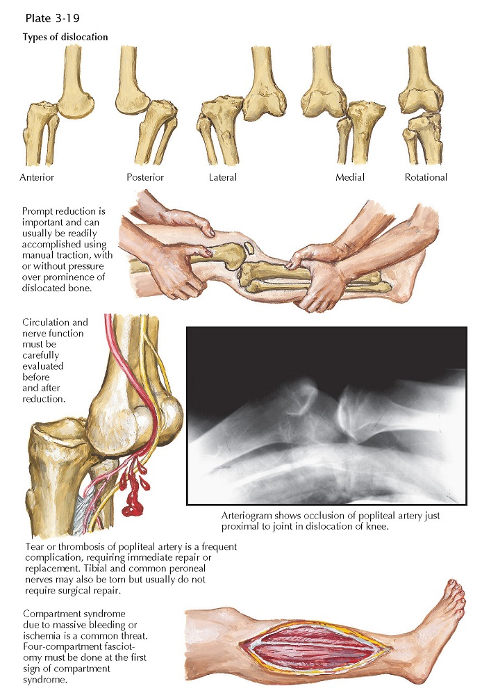 DISLOCATION OF KNEE JOINT