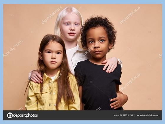 warna kulit, bentuk rambut dan bentuk pertumbuhan dahi