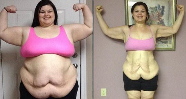 You Will Be Shocked How This 17-YEAR-OLD GIRL Lost Half Her Weight in Just 1 Year