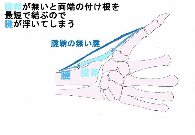 腱鞘炎 手首の痛み 船橋