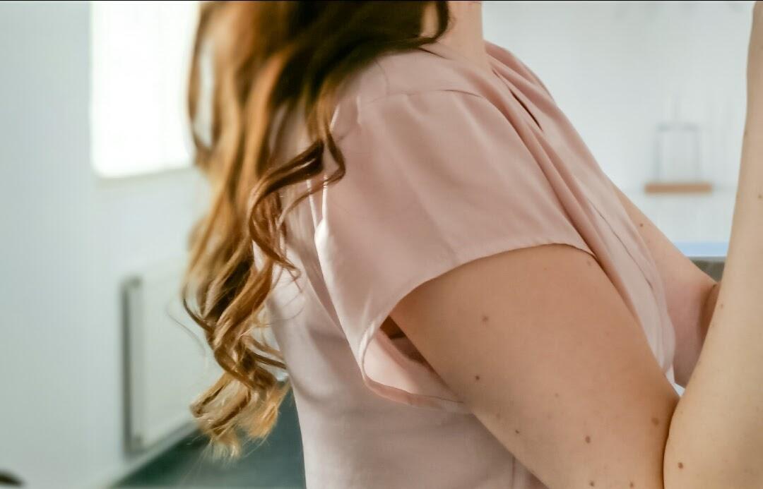 Hiustenlähtö raskauden jälkeen