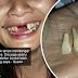Tercabut 2 batang gigi depan akibat disepak suami