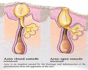 Acne is a skin condition achieved by a large group of components that all add to its advancement.