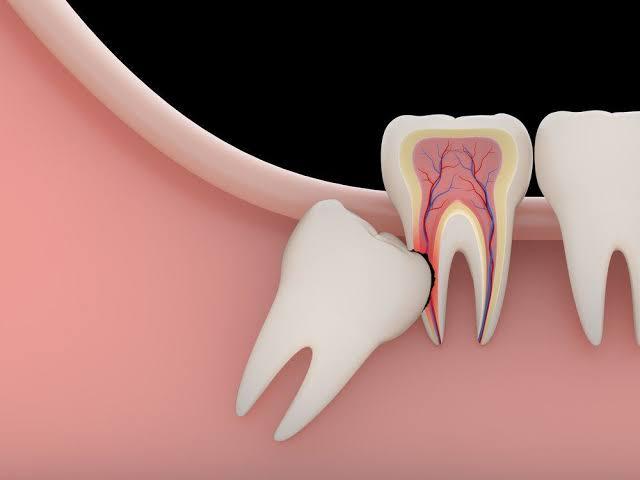 Inilah Obat Sakit Gigi Yang Paling Ampuh
