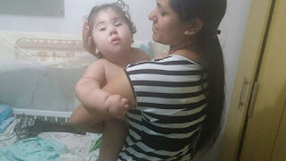 Família de criança com hidrocefalia de Nova Floresta precisa de ajuda para comprar uma cadeira especial