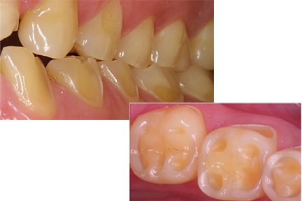 erosive lesion of teeth due to acidic drinks and foods