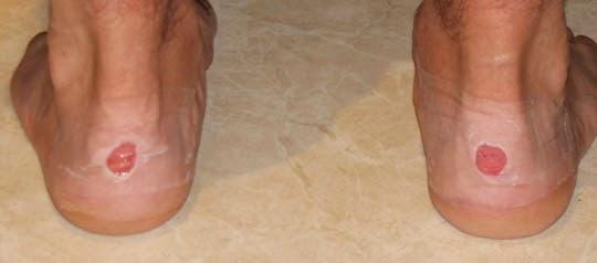 La negrura sobre las uñas de los pies que curar