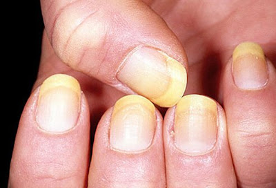 Yellow color of nails is not a symptom of major illness