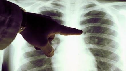 Ненадежная медицина: как мы делали это до рентгена?