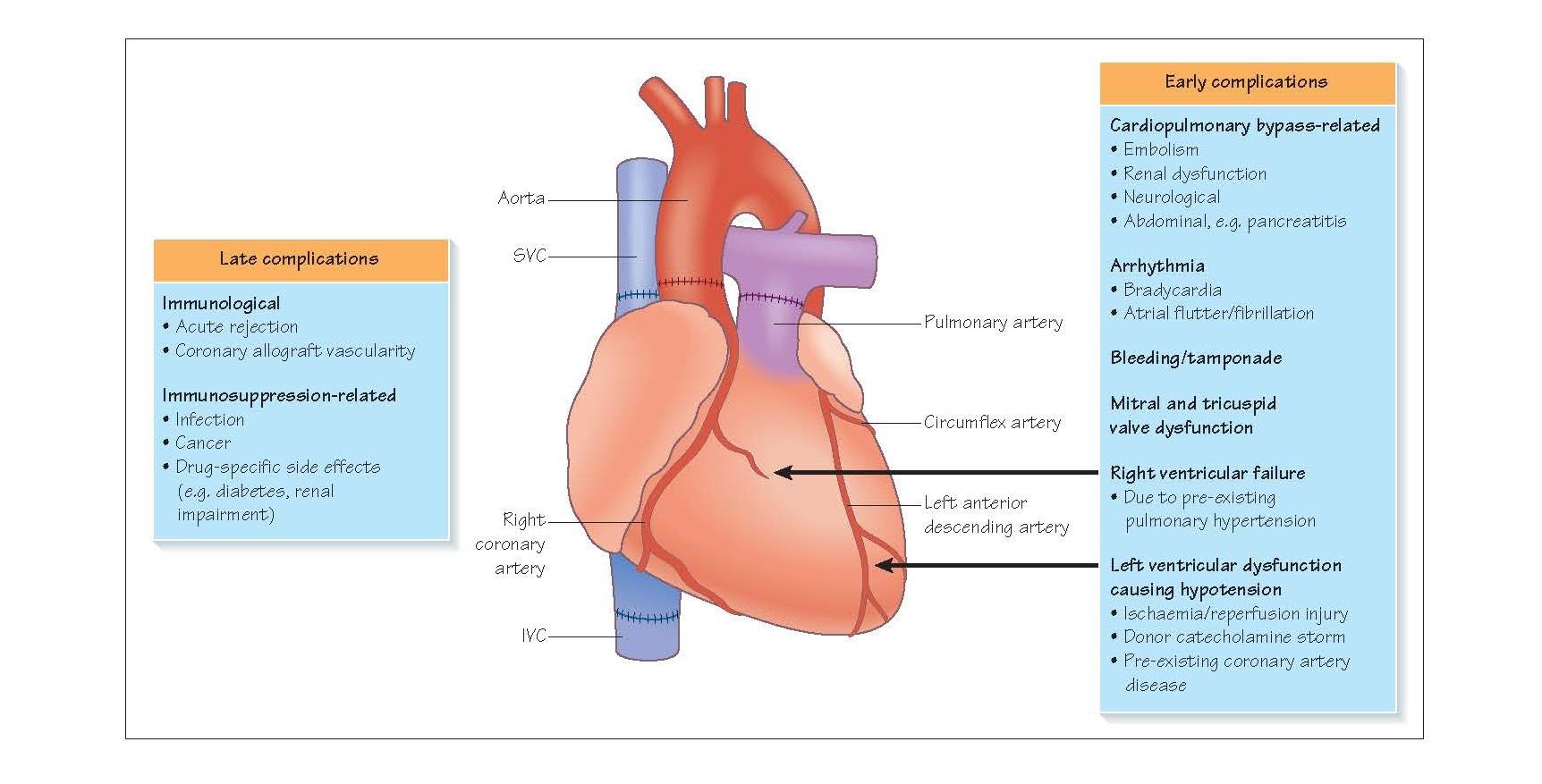 Complications Of Heart Transplantation
