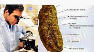 http://obatherbaltulangkeropos.blogspot.com/2016/03/obat-nutrisi-tulang-dan-sendi.html