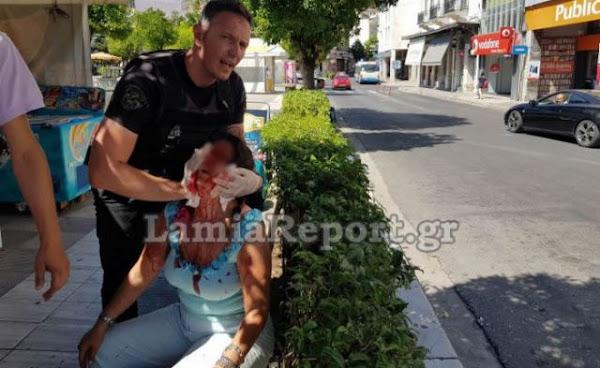 Λαμία: Χαρακώθηκε με ξυράφι στο κέντρο της πόλης - ΒΙΝΤΕΟ