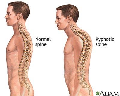 kifosis, bentuk kifosis, tulang kifosis, punggung kifosis, bahaya kifosis, apa itu kifosis