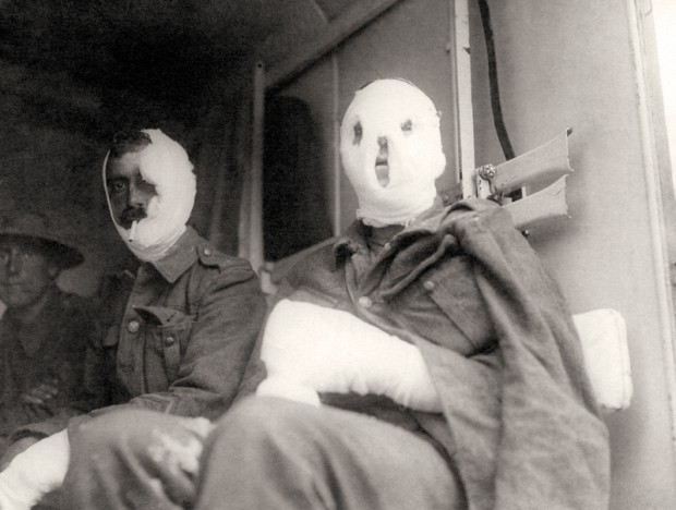 historical photos  ww1 injured soldiers