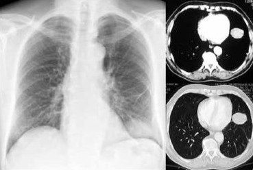 Health And Beauty: Asbestosis Definition : What Is