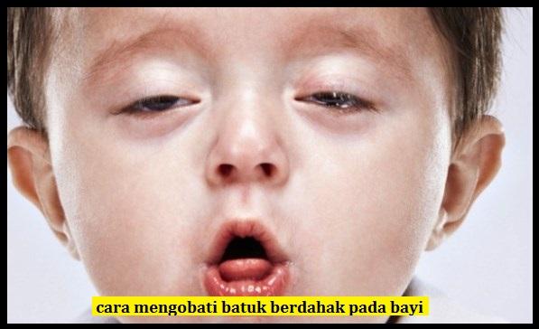 Cara Mengobati Batuk Berdahak Pada Bayi Yang Ampuh | DAUN ...
