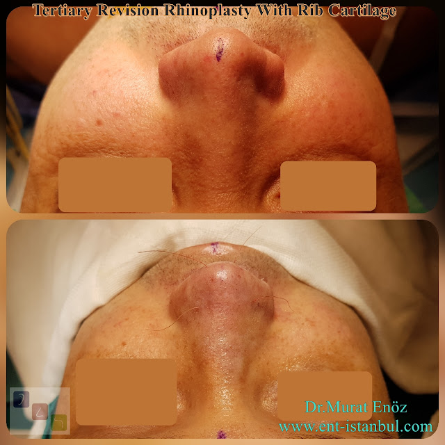 Tertiary Revision Rhinoplasty With Rib Cartilage