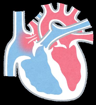 心房中隔欠損症のイラスト