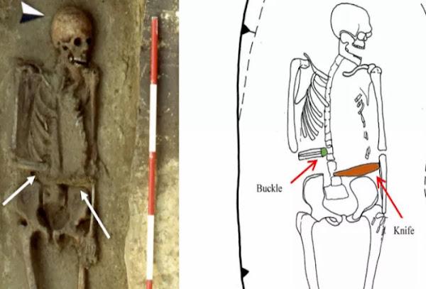 Ο σκελετός του πολεμιστή με το ακρωτηριασμένο χέρι που αντικαταστάθηκε με την προσθήκη λεπίδας.