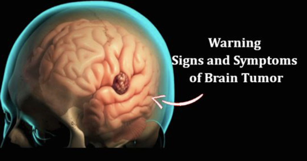 Early Signs and Symptoms of Brain Tumor in Women and Men