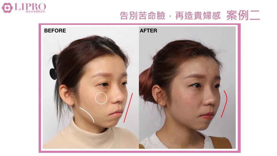 精緻好緣臉|臉部精雕|自體脂肪補臉|顯微套管臉部抽脂|精緻鼻雕|全臉複合式治療