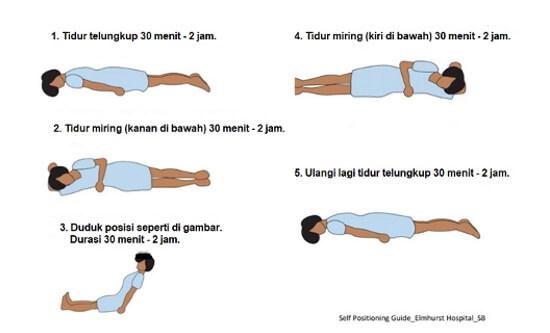 proning, oksigenasi, covid-19, tengkurap, posisi tidur