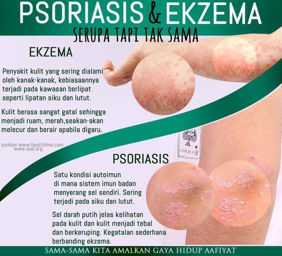Psoriasis dan Eczema